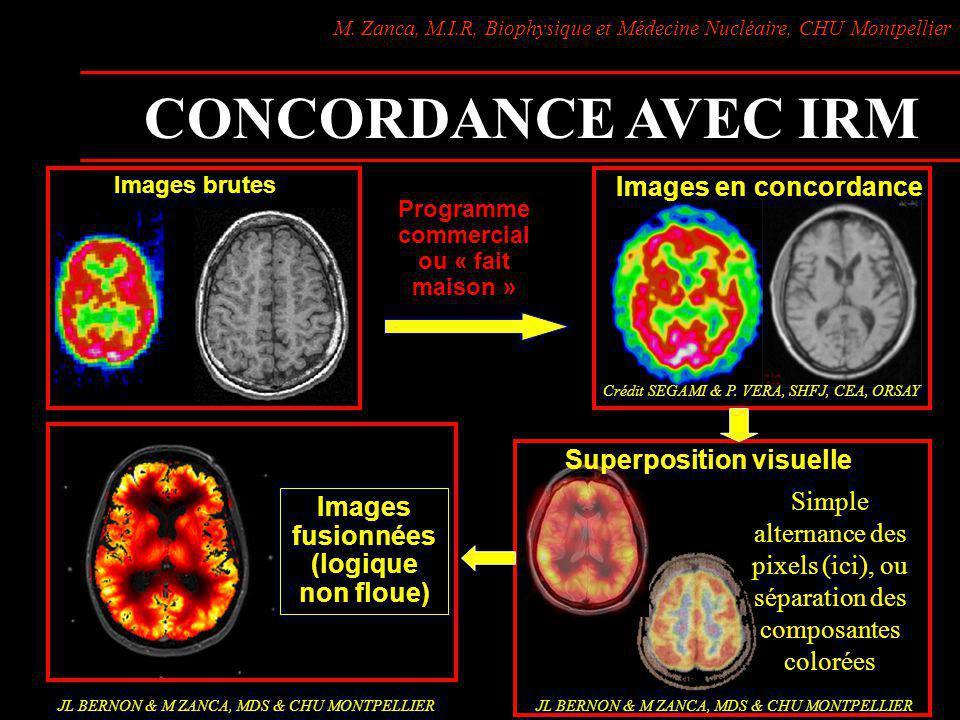 M. Zanca, M.I.R, Biophysique et Médecine Nucléaire, CHU Montpellier CONCORDANCE AVEC IRM Programme commercial ou « fait maison » Images brutes Images