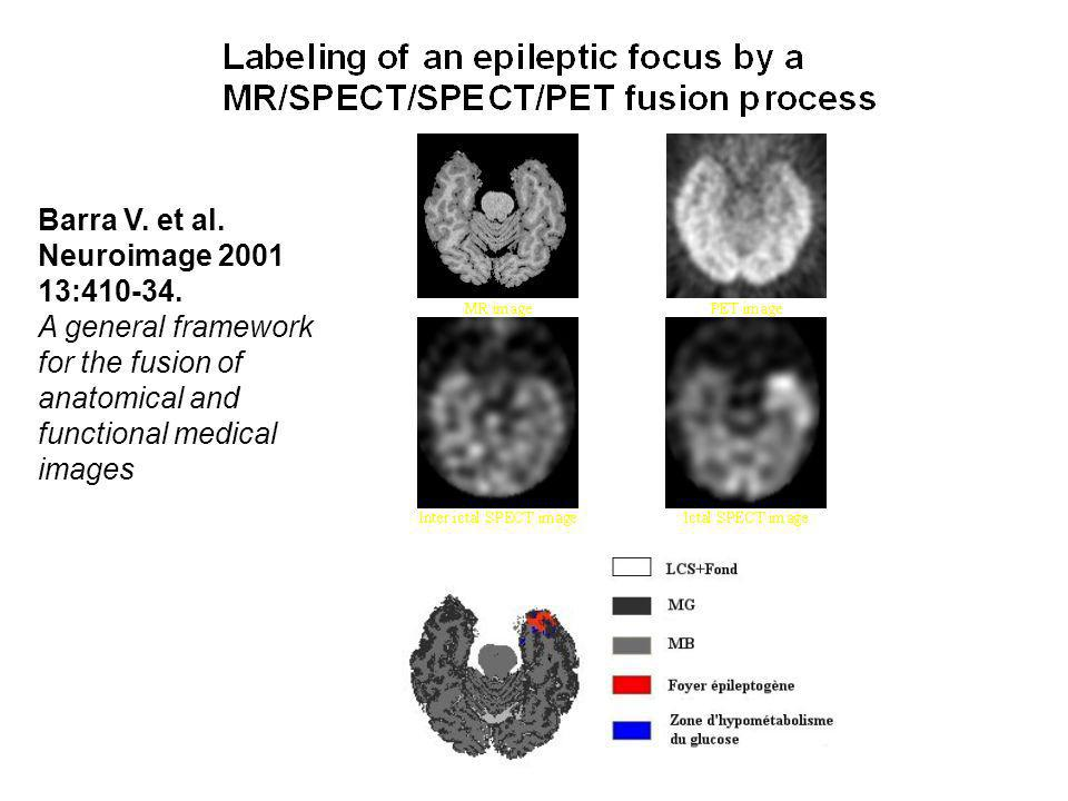 Barra V.et al. Neuroimage 2001 13:410-34.