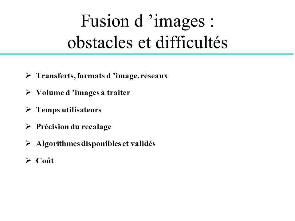 Fusion d images : obstacles et difficultés Transferts, formats d image, réseaux Volume d images à traiter Temps utilisateurs Précision du recalage Algorithmes disponibles et validés Coût