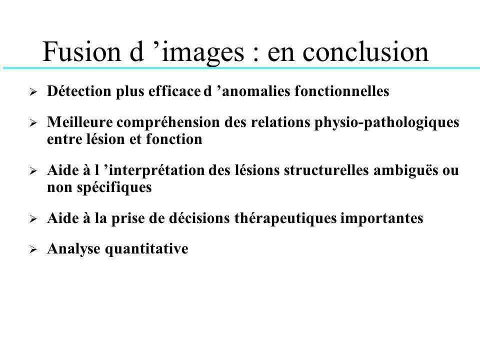 Fusion d images : en conclusion Détection plus efficace d anomalies fonctionnelles Meilleure compréhension des relations physio-pathologiques entre lésion et fonction Aide à l interprétation des lésions structurelles ambiguës ou non spécifiques Aide à la prise de décisions thérapeutiques importantes Analyse quantitative