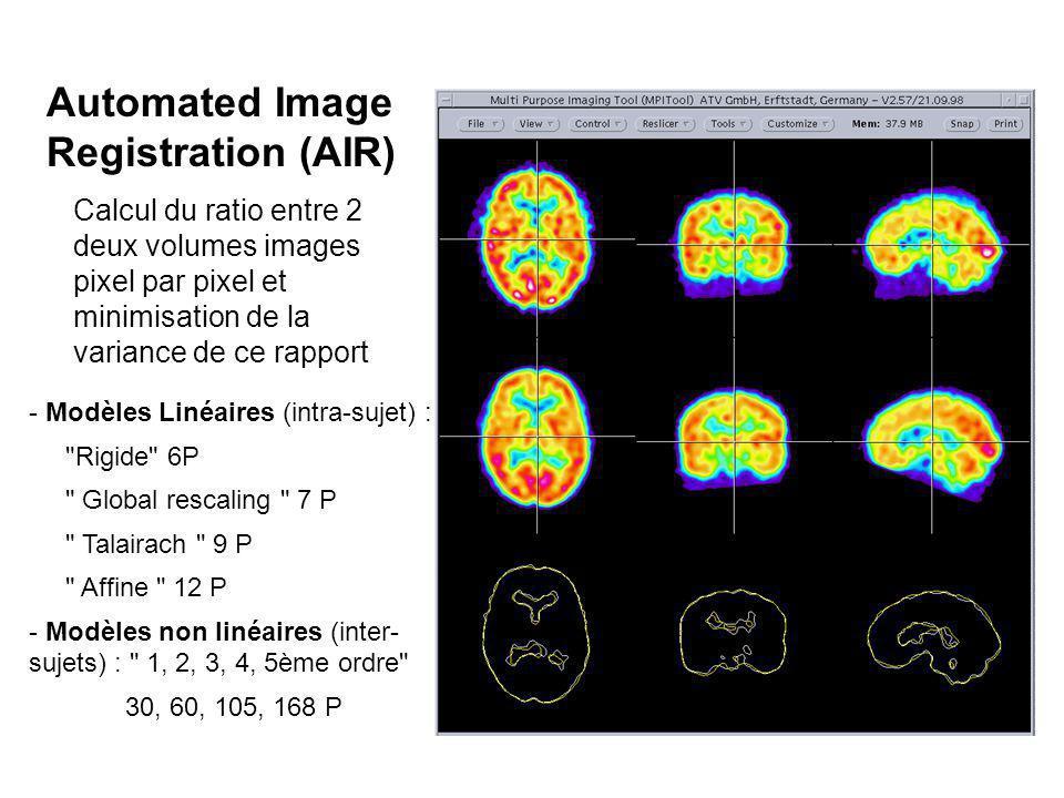 Automated Image Registration (AIR) Calcul du ratio entre 2 deux volumes images pixel par pixel et minimisation de la variance de ce rapport - Modèles Linéaires (intra-sujet) : Rigide 6P Global rescaling 7 P Talairach 9 P Affine 12 P - Modèles non linéaires (inter- sujets) : 1, 2, 3, 4, 5ème ordre 30, 60, 105, 168 P