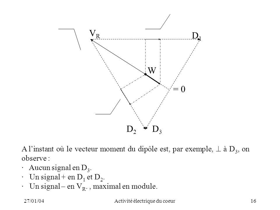 27/01/04Activité électrique du coeur16 A linstant où le vecteur moment du dipôle est, par exemple, à D 3, on observe : · Aucun signal en D 3. · Un sig