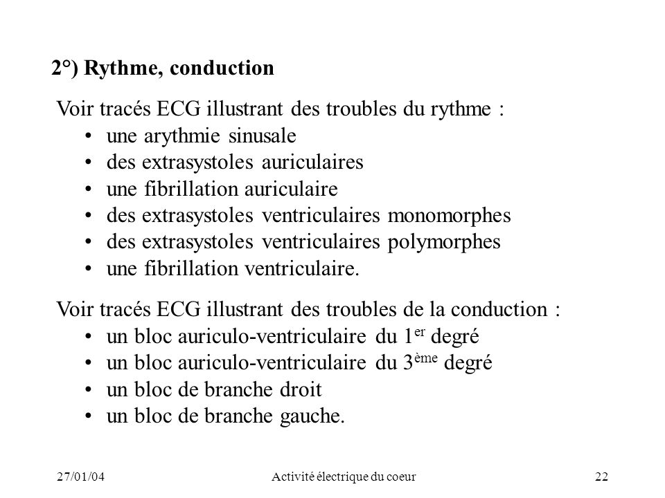 27/01/04Activité électrique du coeur22 2°) Rythme, conduction Voir tracés ECG illustrant des troubles du rythme : une arythmie sinusale des extrasysto