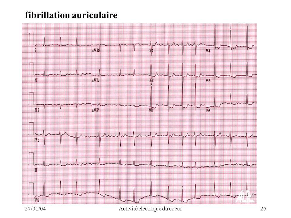 27/01/04Activité électrique du coeur25 fibrillation auriculaire