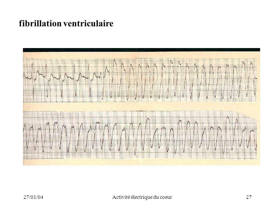 27/01/04Activité électrique du coeur27 fibrillation ventriculaire