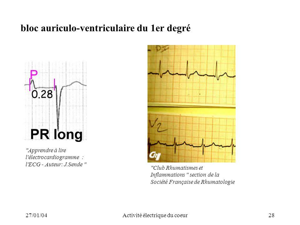 27/01/04Activité électrique du coeur28 bloc auriculo-ventriculaire du 1er degré
