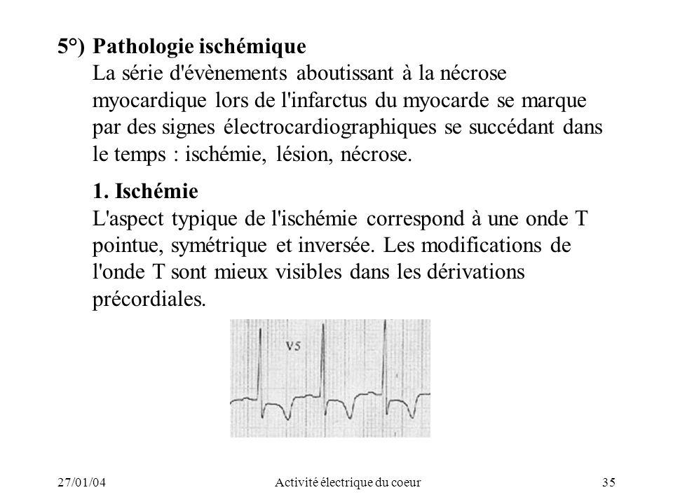 27/01/04Activité électrique du coeur35 5°)Pathologie ischémique La série d'évènements aboutissant à la nécrose myocardique lors de l'infarctus du myoc