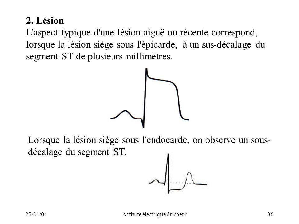 27/01/04Activité électrique du coeur36 2. Lésion L'aspect typique d'une lésion aiguë ou récente correspond, lorsque la lésion siège sous l'épicarde, à