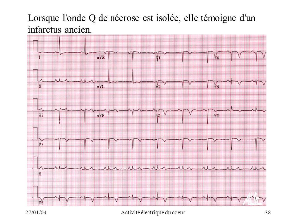 27/01/04Activité électrique du coeur38 Lorsque l'onde Q de nécrose est isolée, elle témoigne d'un infarctus ancien.