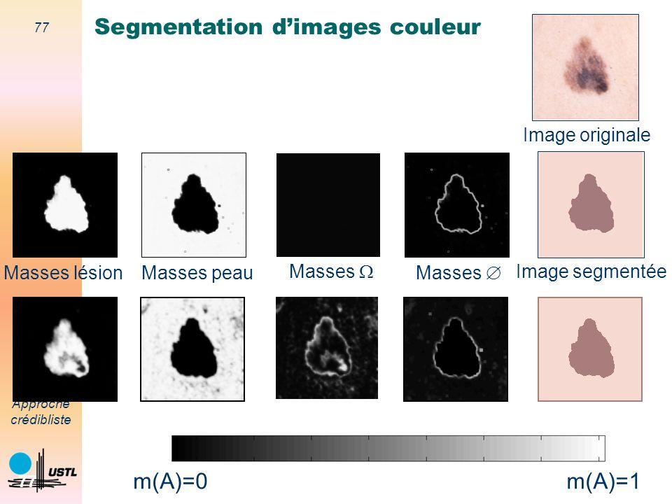 76 Approche crédibliste 76 Masses lésion Masses peau Masses Image originale Image segmentée m(A)=1 m(A)=0 Segmentation dimages couleur