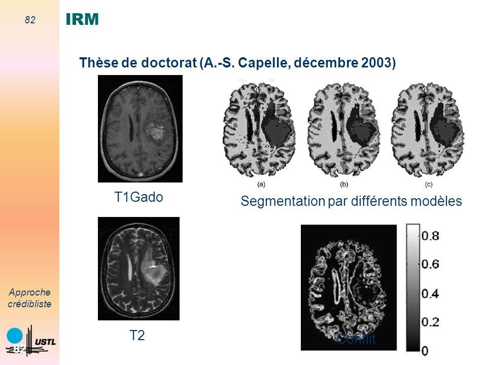 81 Approche crédibliste 81 Segmentation de coupes IRM et reconstruction 3D T2 T1 T1Gado Contexte de létude Imagerie médicale Aide au diagnostic Suivi