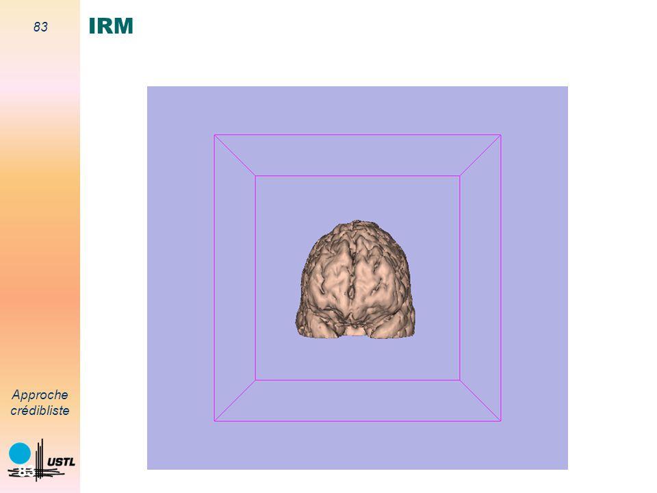 82 Approche crédibliste 82 T1Gado T2 IRM Conflit Segmentation par différents modèles Thèse de doctorat (A.-S. Capelle, décembre 2003)