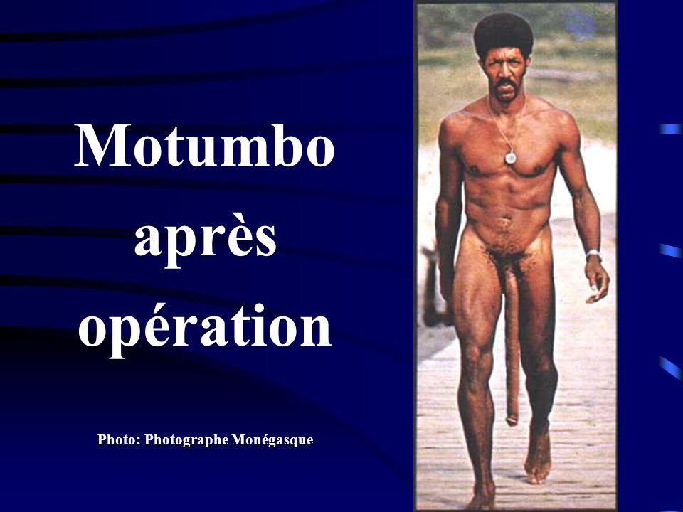 Motumbo après opération Photo: Photographe Monégasque