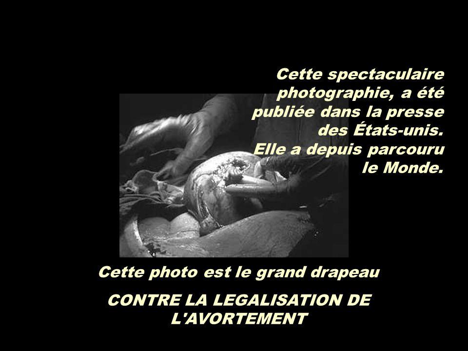 … le bébé a sorti sa petite main de l'utérus de sa mère, pour essayer de toucher les doits du docteur qui l'opérait. Paul Harris, a capté le moment ex