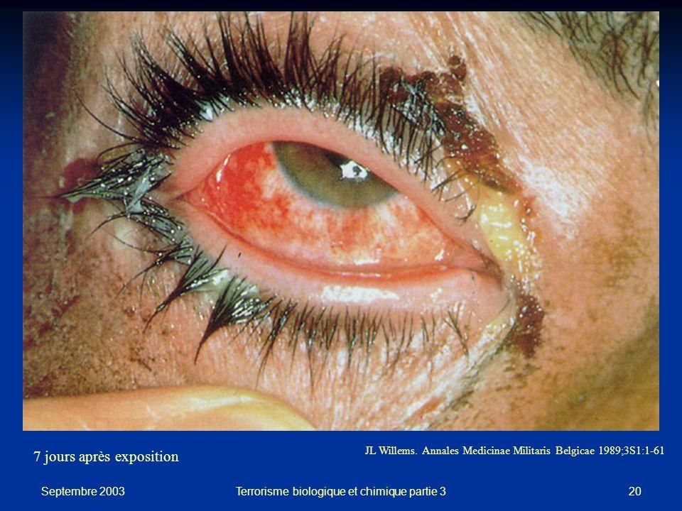 Septembre 2003 Terrorisme biologique et chimique partie 320 JL Willems.