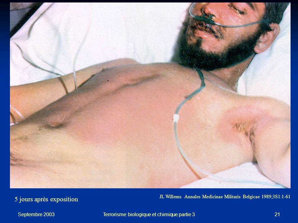 Septembre 2003 Terrorisme biologique et chimique partie 321 JL Willems.