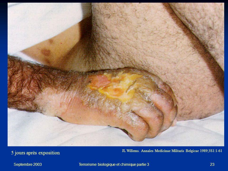 Septembre 2003 Terrorisme biologique et chimique partie 323 JL Willems.