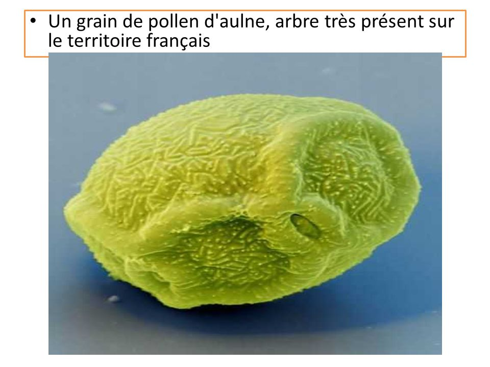 Le pollen : de minuscules grains, ici d'armoise, photographiés au microscope