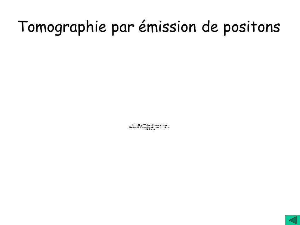 Quels sont les usages des antiparticules ? 1) Aujourdhui: utilisation en imagerie médicale 2) A l étude: utilisation dans le stockage de l'énergie, po