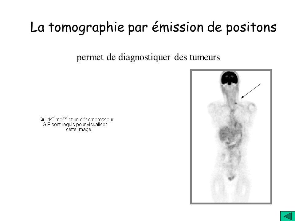 La tomographie par émission de positons lire des mots sur un écran entendre des mots permet d étudier le comportement du cerveau