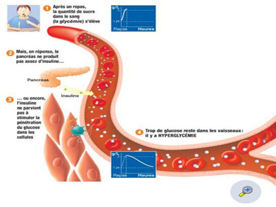 *Chez lenfant Le diabète sucré est une maladie métabolique chronique souvent insulinoprive touchant une tranche dâge de 0 à 15 ans.