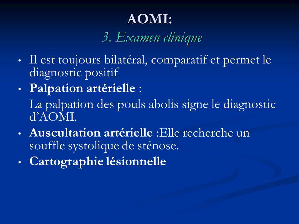 AOMI: 3. Examen clinique Il est toujours bilatéral, comparatif et permet le diagnostic positif Palpation artérielle : La palpation des pouls abolis si