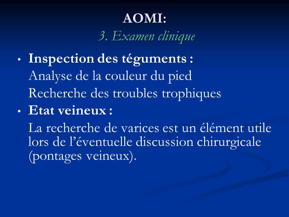 AOMI: 3. Examen clinique Inspection des téguments : Analyse de la couleur du pied Recherche des troubles trophiques Etat veineux : La recherche de var