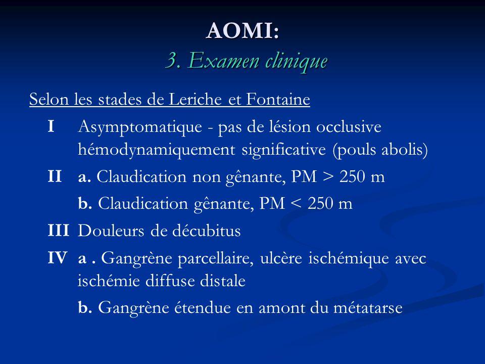 AOMI: 3. Examen clinique Selon les stades de Leriche et Fontaine IAsymptomatique - pas de lésion occlusive hémodynamiquement significative (pouls abol