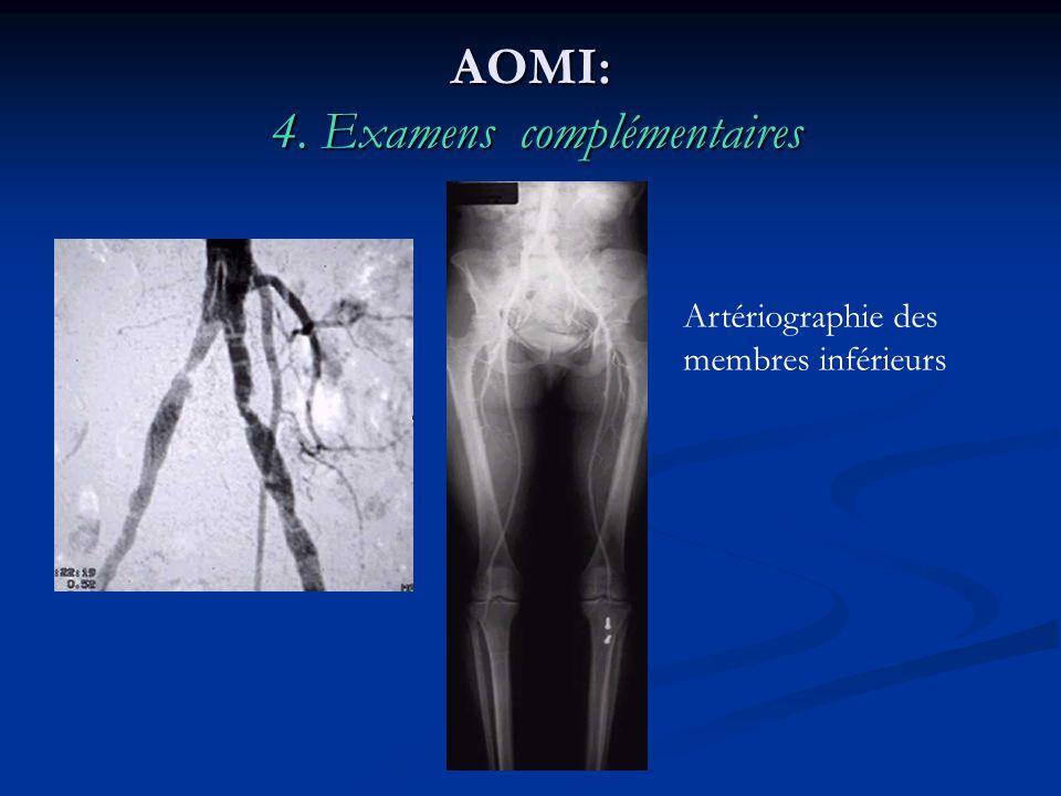 AOMI: 4. Examens complémentaires Artériographie des membres inférieurs