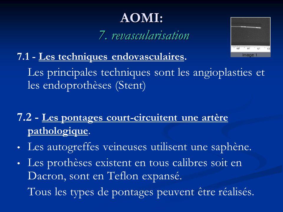 AOMI: 7. revascularisation 7.1 - Les techniques endovasculaires. Les principales techniques sont les angioplasties et les endoprothèses (Stent) 7.2 -