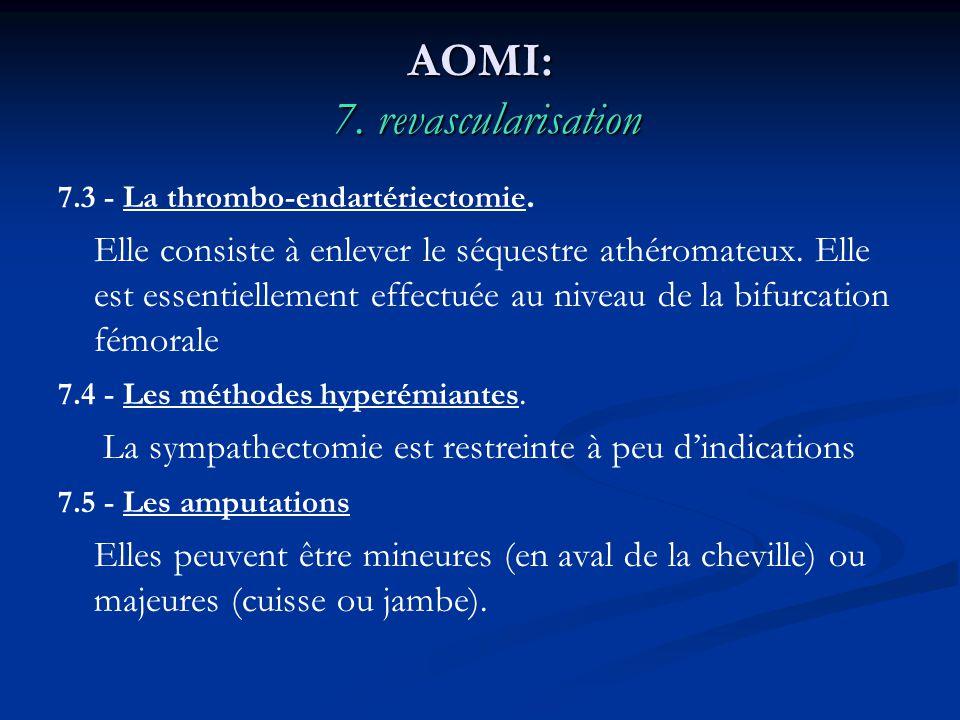AOMI: 7. revascularisation 7.3 - La thrombo-endartériectomie. Elle consiste à enlever le séquestre athéromateux. Elle est essentiellement effectuée au