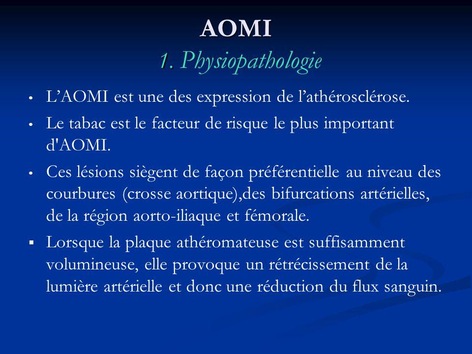 AOMI 1. AOMI 1. Physiopathologie LAOMI est une des expression de lathérosclérose. Le tabac est le facteur de risque le plus important d'AOMI. Ces lési