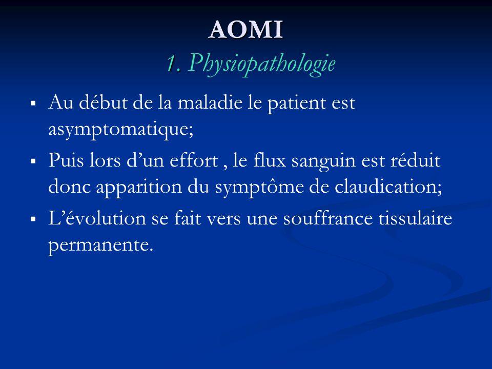 AOMI 1. AOMI 1. Physiopathologie Au début de la maladie le patient est asymptomatique; Puis lors dun effort, le flux sanguin est réduit donc apparitio