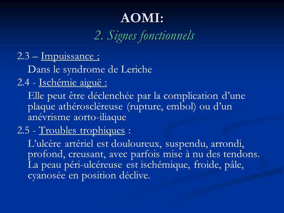 AOMI: 2. Signes fonctionnels 2.3 – Impuissance ; Dans le syndrome de Leriche 2.4 - Ischémie aiguë : Elle peut être déclenchée par la complication dune