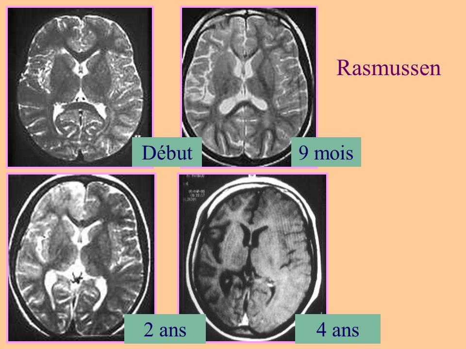 Hamartome du tuber cinereum Hamartome hypothalamique Substance grise hétérotopique Attaché au tuber cinereum, corps mamillaires, ou la tige pituitaire Pédiculé ou sessile Puberté précoce, crises gélastiques