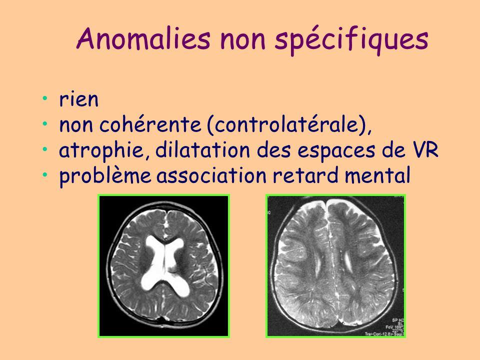 Cicatrices pré-per- postnatales (ischémique, traumatique, infections...): les plus fréquentes Tumeurs: –oligodendrogliome (50% des cas de T avec épilepsie) –Hamartome V3 Abcès : crises répétées, en particulier cysticercose Slérose mésiale: moins fréquente que adulte Anomalies spécifiques acquises