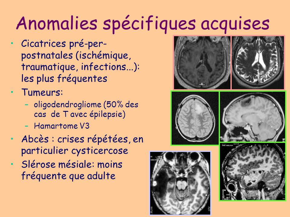 Anomalies spécifiques développementales Non nerveux –Vasculaire (cavernome, Sturge-Weber, MAV) –Lipome –Kyste dysembryoplasique: épidermoide