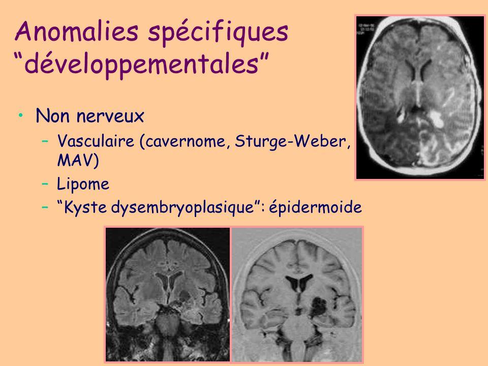 Malformations: exceptée Chiari 2 (si isolé), toutes les malformations sont épileptogènes (généralisée ou partielle): holoprosencéphalie, agénésie des commissures, lissencéphalies, MPG, hétérotopies, DCF Même dans les épilepsies généralisées symptomatiques, un foyer focal (chirurgical) fonctionnel, morphologique, et histologique peut être démontré Une dysplasie cérébrale multiple (sclérose tubéreuse) peut produire une épilepsie partielle Anomalies spécifiques développementales