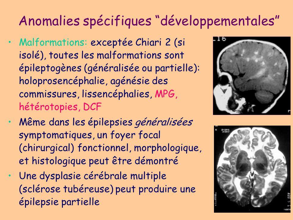 Malformations Dysplasie corticale focale, avec ou sans balloon cells Aspects spécifiques et moins spécifiques FFTS: forme fruste de sclérose tubéreuse de Bourneville « Blurred cortex »