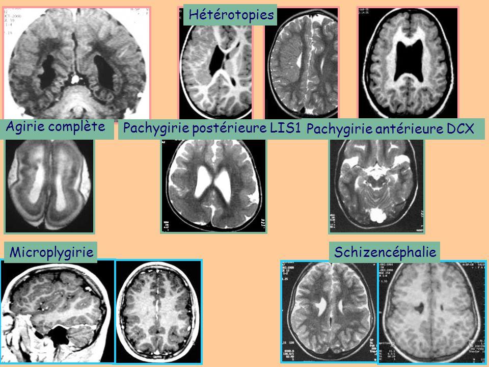 Tumeurs développementales Gangliogliome (enfant, adulte jeune) DNET (enfant, adulte) Gangliocytome (enfant, adulte jeune) dysplasique infantile