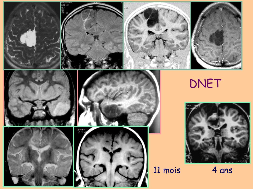 Surgical temporal epilepsy in children Sinclair DB et al., Pediatric Neurosurgery 2003, 38:195-205 Scarring (gliosis, cavitations): 11 cases (26%) Dysplastic lesions17 cases (40%) –ganglioglioma: 7 –DNET: 2 –FCD 4 –Tuberous sclerosis4 Tumors: 5 cases (12%) Angiomatosis:1 case Mesial temporal sclerosis:8 cases (19%)