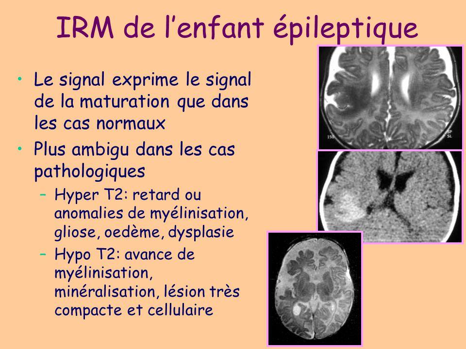 Syndromes période néonatale Crises néonatales familiales bénignes Crises néonatales bénignes idiopathiques (convulsions du 5ème jour) Crises symptomatiques –Encéphalopathie infantile épileptique précoce (EIEP) avec tracé de supression-burst (syndrome d Ohtahara) : anomalies structurelles du SNC (malformations) –encéphalopathie myoclonique précoce (néonatale) (EMP ou EMN) : maladies métaboliques (hyperglycinémie sans cétose)