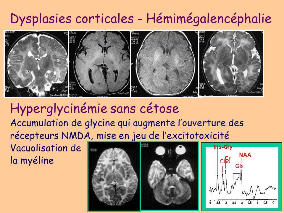 Épilepsies spécifiques à lenfant West: spasme infantile, hypsarythmies (Bourneville +++) Lennox-Gastaud (séquelles, malformations du cortex) État de mal épileptique unilatéral: syndromes HH (hemiatrophy-hemiplegia), HHE (HH epilepsy) Épilepsies catastrophiques : hemimégalencéphalie, Stürge- Weber, Rasmussen (épilepsie unilatérale) Hamartome Hypothalamique: crises gélastiques Épilepsies myocloniques : –maladies métaboliques (i.e céroïde lipofuscinose), –EM sévère (convulsions fébriles et non fébriles, syndrome de Dravet, imagerie normale) Syndrome de Landau-Kleffner (aphasie): imagerie normale