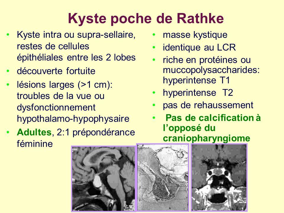 Kyste poche de Rathke Kyste intra ou supra-sellaire, restes de cellules épithéliales entre les 2 lobes découverte fortuite lésions larges (>1 cm): tro