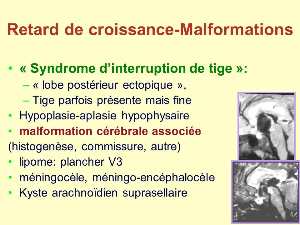 Retard de croissance-Malformations « Syndrome dinterruption de tige »: –« lobe postérieur ectopique », –Tige parfois présente mais fine Hypoplasie-apl