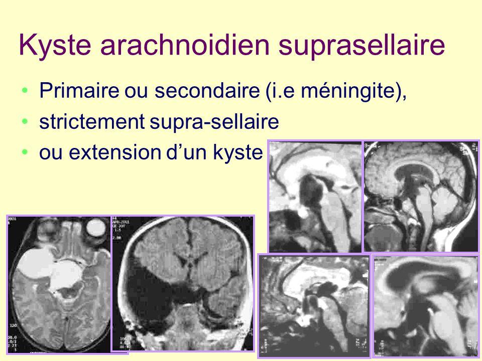 Kyste arachnoidien suprasellaire Primaire ou secondaire (i.e méningite), strictement supra-sellaire ou extension dun kyste temporosylvien