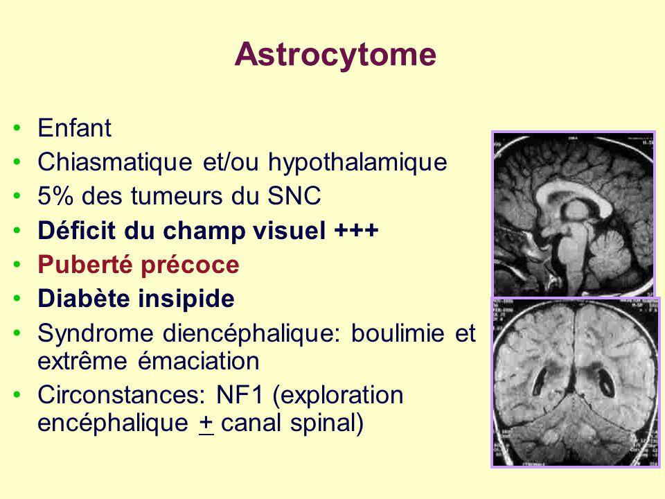 Astrocytome Enfant Chiasmatique et/ou hypothalamique 5% des tumeurs du SNC Déficit du champ visuel +++ Puberté précoce Diabète insipide Syndrome dienc