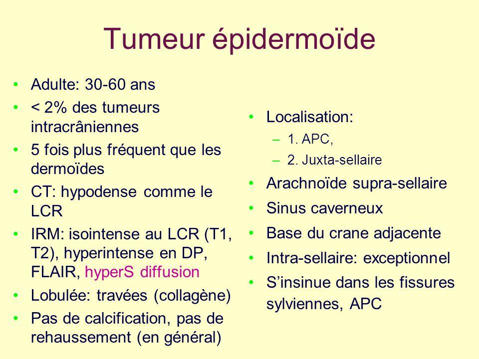 Tumeur épidermoïde Adulte: 30-60 ans < 2% des tumeurs intracrâniennes 5 fois plus fréquent que les dermoïdes CT: hypodense comme le LCR IRM: isointens