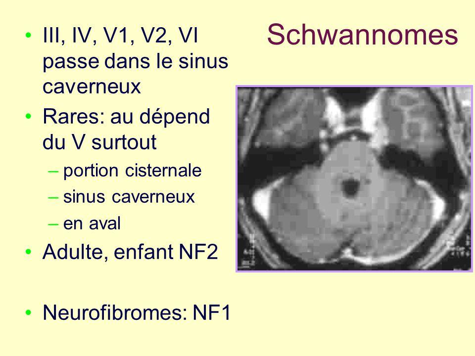 Schwannomes III, IV, V1, V2, VI passe dans le sinus caverneux Rares: au dépend du V surtout –portion cisternale –sinus caverneux –en aval Adulte, enfa