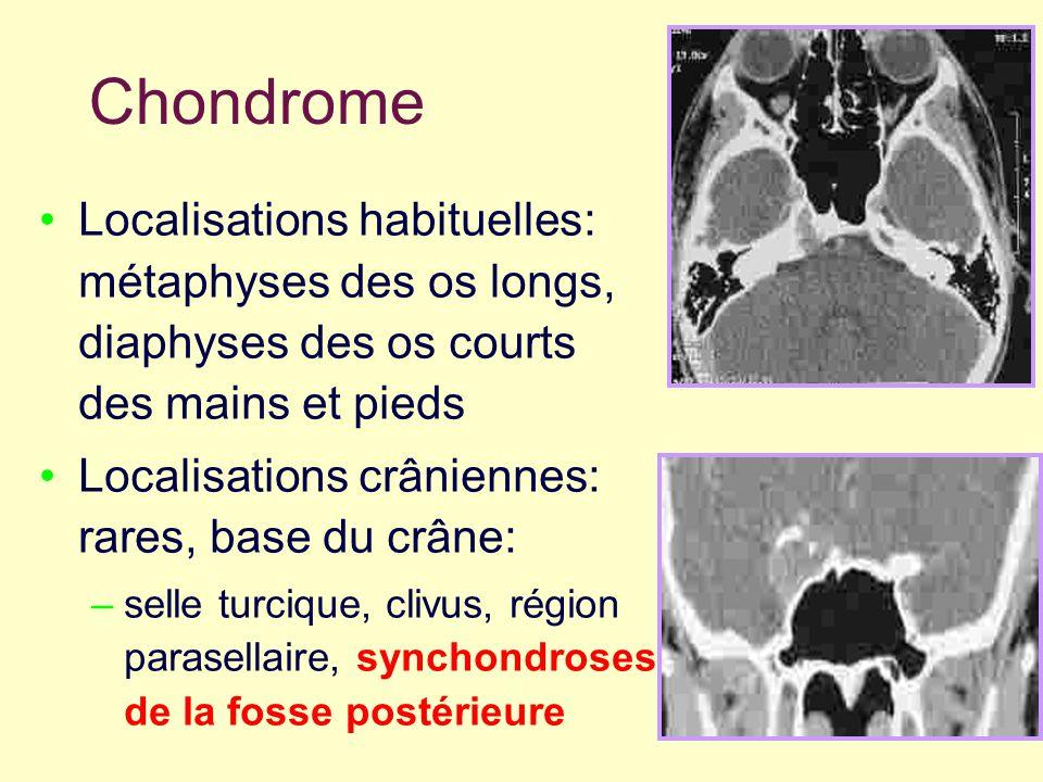 Chondrome Localisations habituelles: métaphyses des os longs, diaphyses des os courts des mains et pieds Localisations crâniennes: rares, base du crân